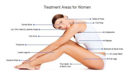 laser-hair-removal-treatment-areas-for-women